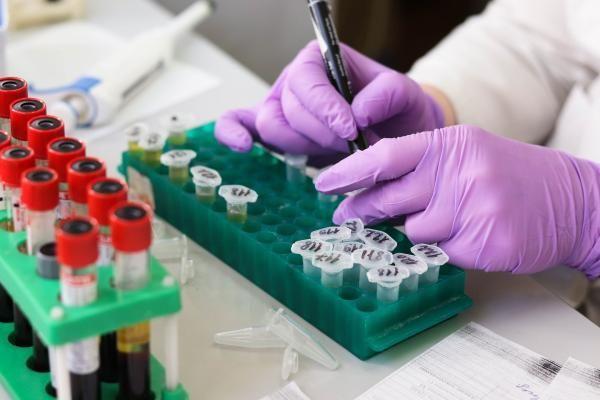 מניות חברת Pfizer צונחות ב6% אחוזים לאחר שהודיעה על עצירת מחקר משמעותי שלה